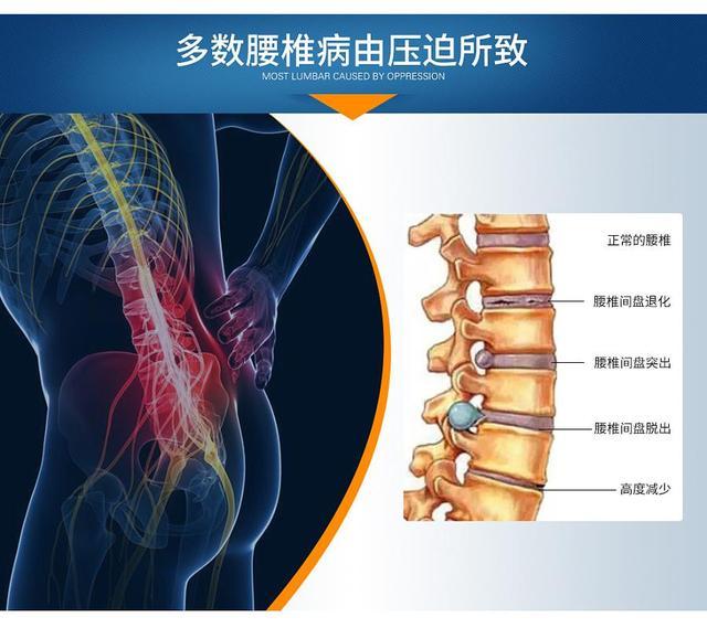4类人易发腰椎间盘突出,治腰椎,只需一中医方子