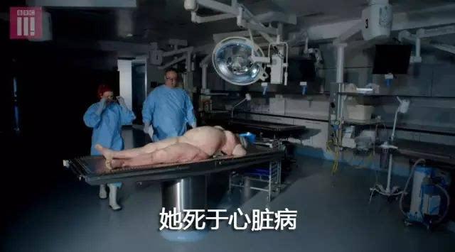 肥胖女尸体_bbc解剖肥胖女子尸体,承受能力差者慎入!