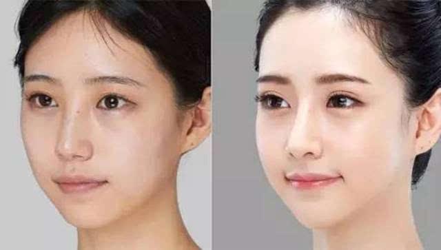 改善皮肤-听说,很多女神都选了它,效果真的棒极了