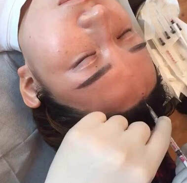 经过对皮肤的表皮层-真皮层-筋膜层的胶原纤维结构损伤,释放大量的胶