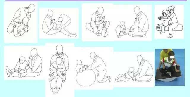 脑瘫患儿的核心力量训练,图解各个运动阶段训练方法