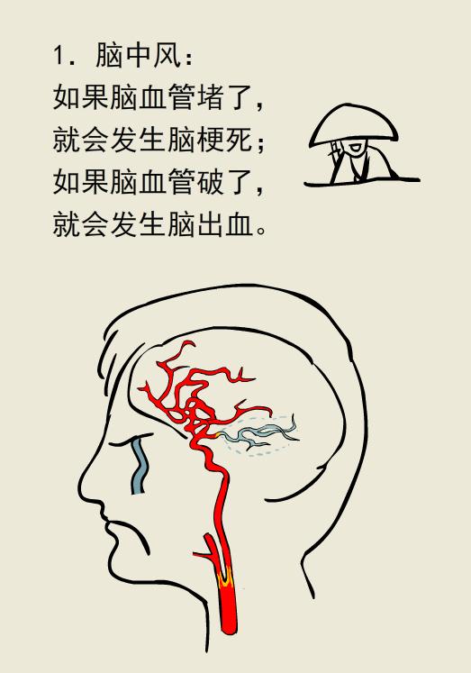 如果身体出现这些异常,可能你的脑子就有病了!