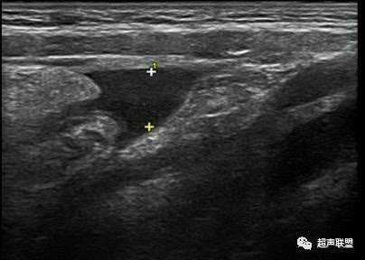 急性阑尾炎超声诊断