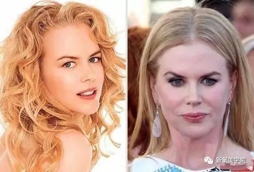 盘点:好莱坞女星整容变女神比韩国女星更凶猛