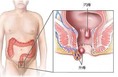 痔疮挑背法的原理_挑背治疗痔疮痔点图片