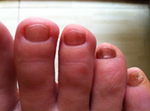 灰指甲用啥药好_灰指甲怎么治疗灰指甲吃什么好