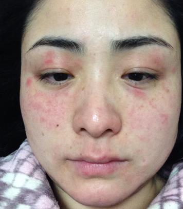 化妆品过敏紧急自救三步骤