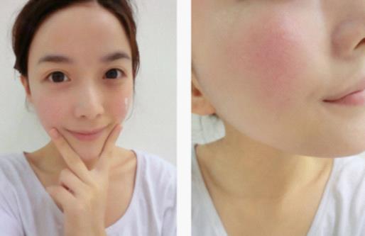 脸上有红血丝就不能随便伤害角质