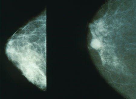 网友Coolwulf的乳腺癌X光片AI早筛项目:免费使用 准确度高达90%的照片 - 1