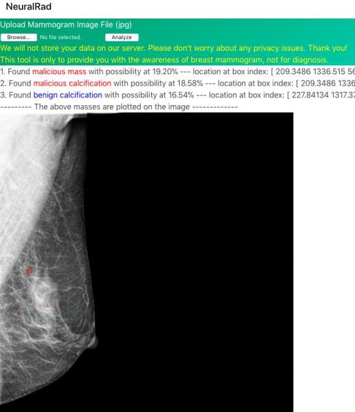 网友Coolwulf的乳腺癌X光片AI早筛项目:免费使用 准确度高达90%的照片 - 5