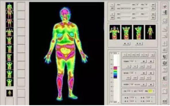 红外热成像仪热像检查结果怎么看