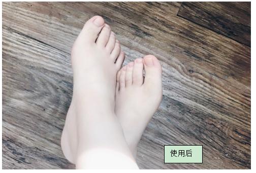 使用了传说中的足膜!Baby Foot彻底解析报告!