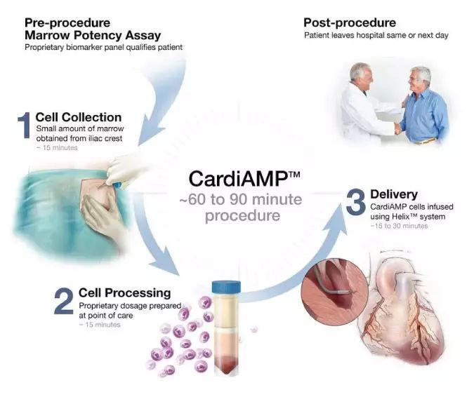 干细胞疗法CardiAMP治疗心衰III期临床试验结果