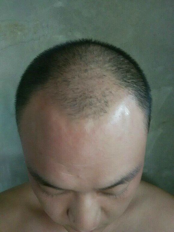 Nofap And Hair Regrowth | Sbiroregon org