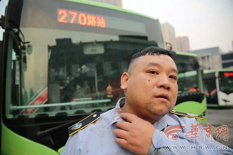 """公交司机制止猥亵男被打到流血,一车乘客却""""没人帮忙""""的照片 - 2"""