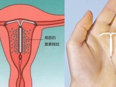 子宫节育器该怎么安全放置,子宫节育器的作用与副作用是什么?