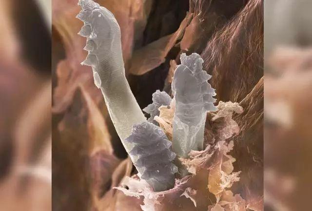 你知道吗?脸上的毛孔中可能生活着大量螨虫的照片 - 2