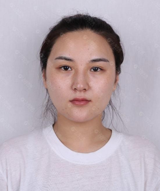 叶丽萍医生做的隆鼻手术,竟然带了网红风