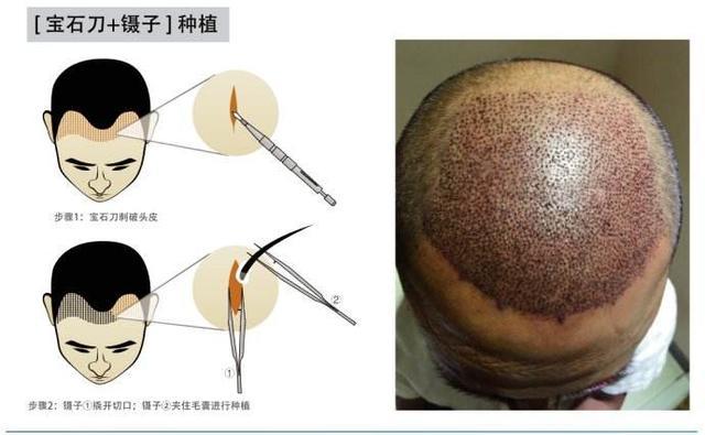 传统植发VS微针植发