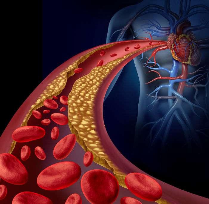 吃醋可以软化血管?50岁后,想让血管年轻,先把三物戒掉