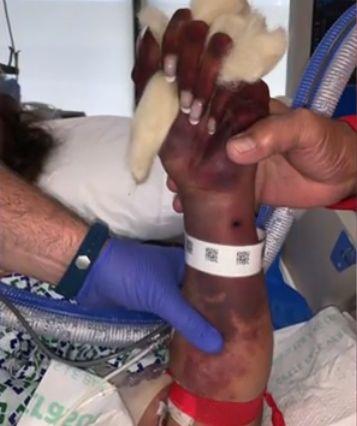 女子被爱犬舔了两口,住院80天,被迫截掉四肢