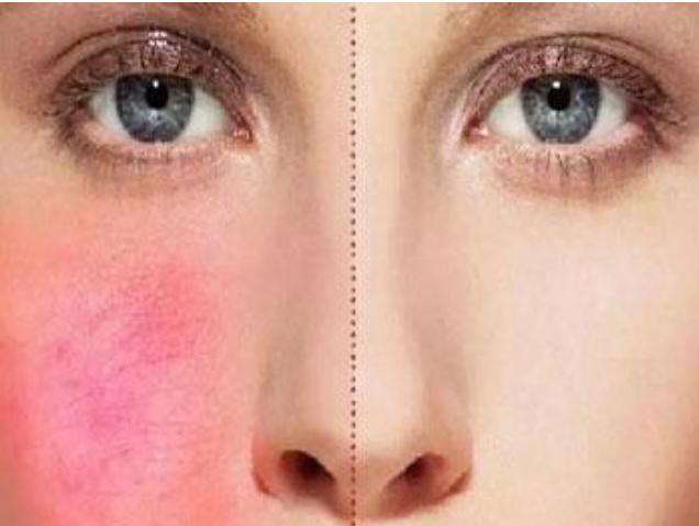 皮肤瘙痒不能吃什么食物 这些食物会让你越吃越痒