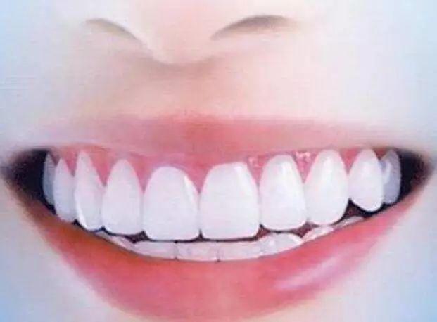 人口腔有多少牙齿_种一颗牙要花两三万 记者走访揭开种植牙市场乱象