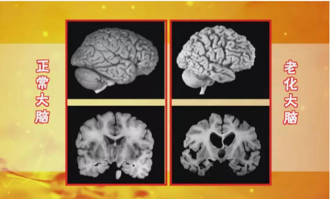 丙酮酸钙_【养生】除了补脑,核桃竟还有这么多功效!_人体