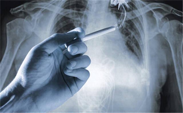 为什么肺癌来前没有征兆?