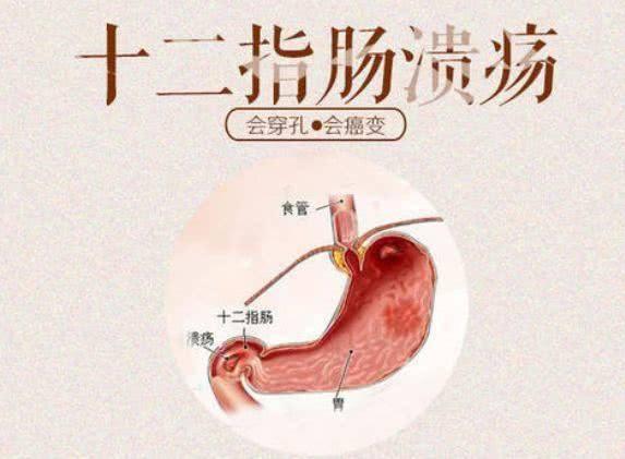 十二指肠溃疡怎么治?
