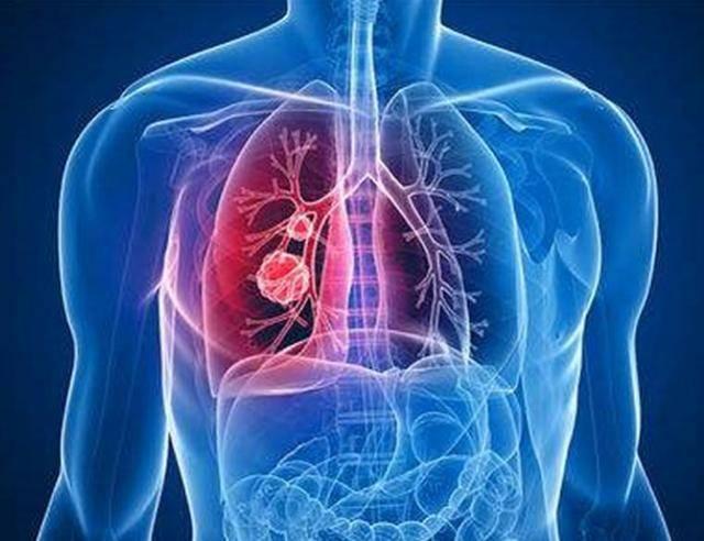 女人不吸烟为什么也会得肺癌?跟她们做的这4件事有关,要重视