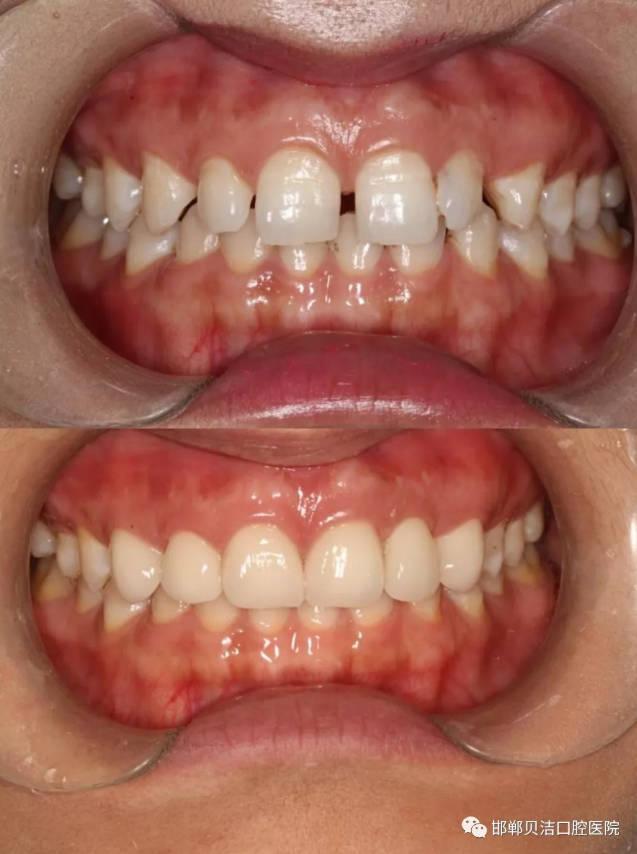 牙缝隙大怎么修复?邯郸贝洁口腔修复案例
