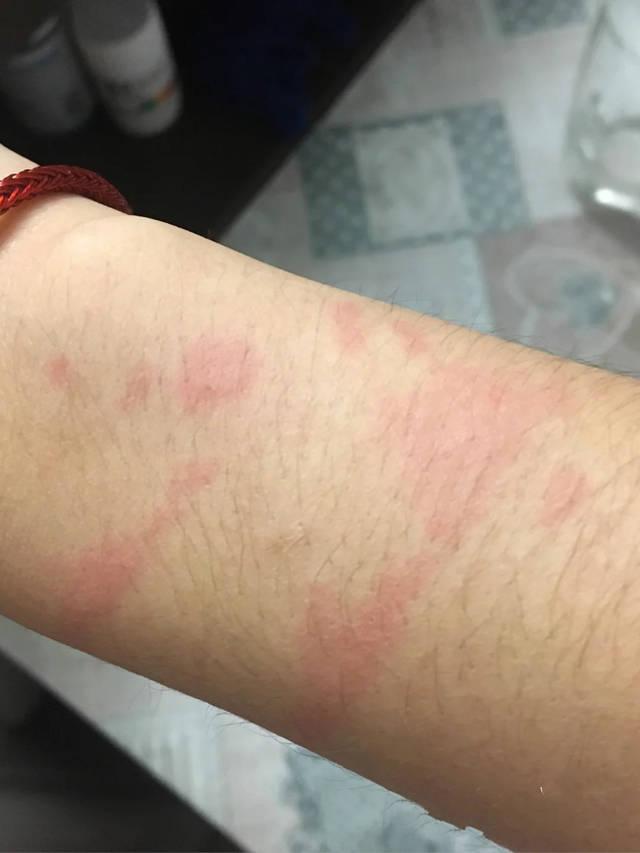 皮肤科大夫推荐的4个方法,荨麻疹患者照着做,远离瘙痒肿痛烦恼